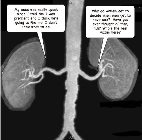 MRA-Kidneys
